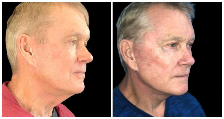 Before and after front view of a face lift